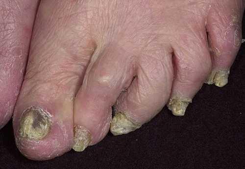 Лечение грибка ногтей на ногах, руках запущенная форма